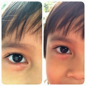 dokter mata untuk anak