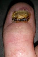 Big Toenail Removal - Right Foot - 8 Weeks & 4 Days