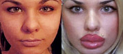 Celebrities with lip injections