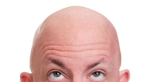 Как сделать лысой голову