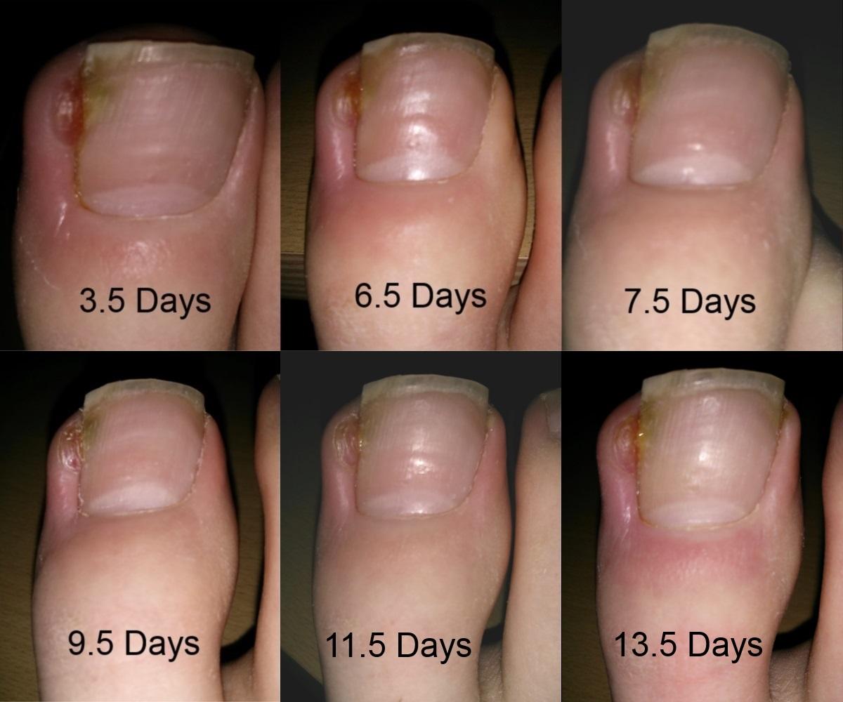 Badly Infected Ingrown Toenail Infected Ingrowing Toenail