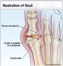 Health Tips: Natural home remedy for gout