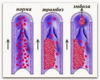 тромбоз сосудов