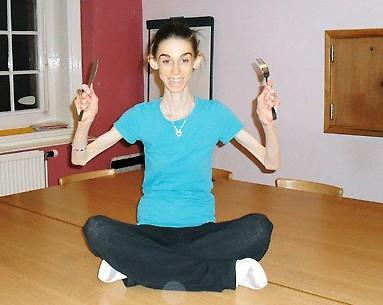A triste e falsa beleza da anorexia - Parte 3