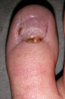 Big Toenail Removal - Right Foot - 12 Weeks & 4 Days