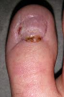 Big Toenail Removal - Right Foot - 12 Weeks & 4 Days