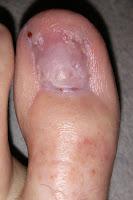 Big Toenail Removal - Left Foot - 18 Weeks & 4 Days
