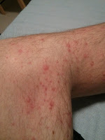 Campath Rash - Leg Initially