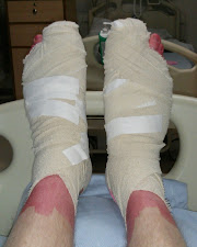 Big Toenails Removed - Bandaged Feet