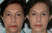 Facelift Before and After  Facial Lifting 