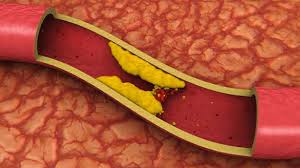 Health Tips: Cholesterol: fighting high cholesterol in healthy aging