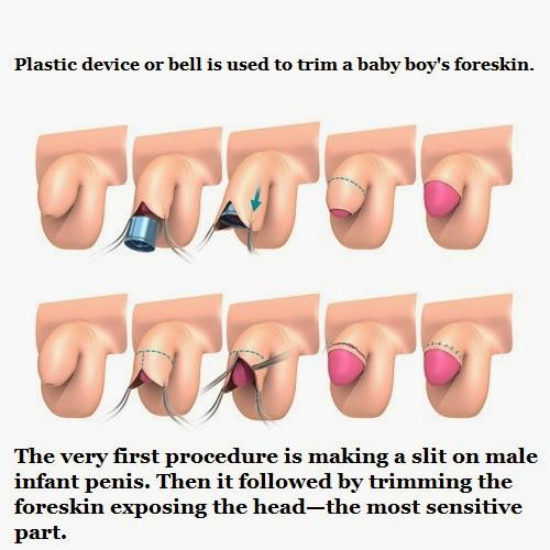 adult-male-circumcision-procedure