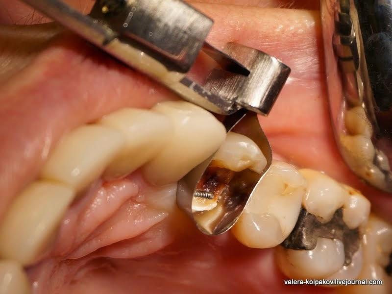 Что делать если обломился зуб под корень