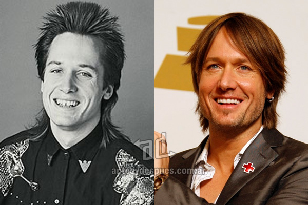 The new smile of Keith Urban, afterdental surgery
