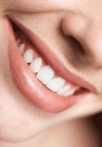 Discoloration of the teeth