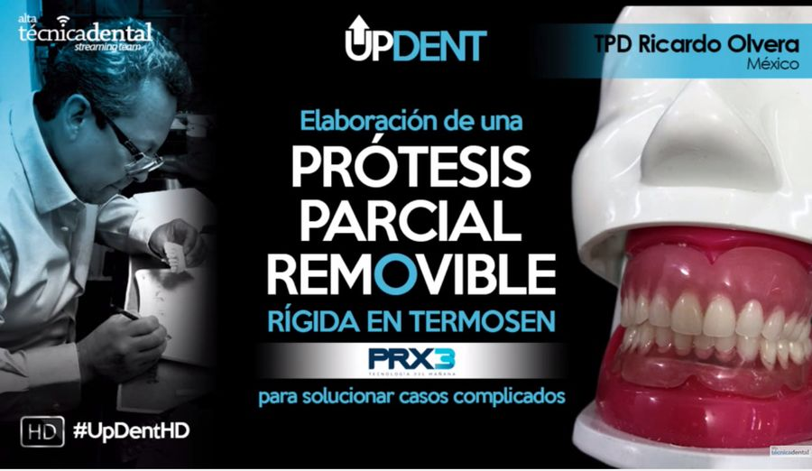protesis-parcial-removible
