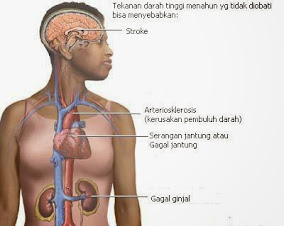 Mirtoplus Untuk Komplikasi Hipertensi