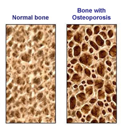 Jra journal of a radical arthritis chick osteopenia and
