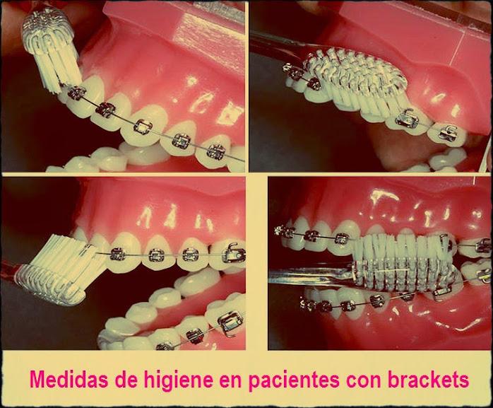 higiene-brackets