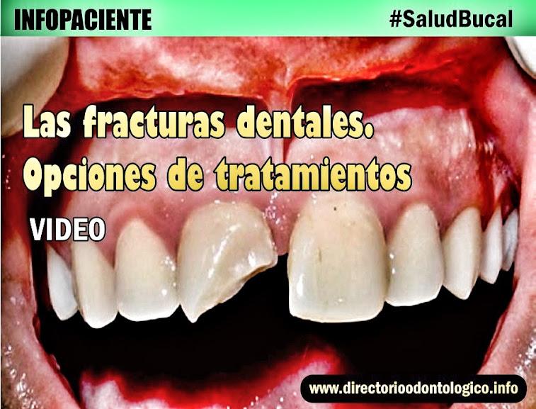 fracturas-dentales