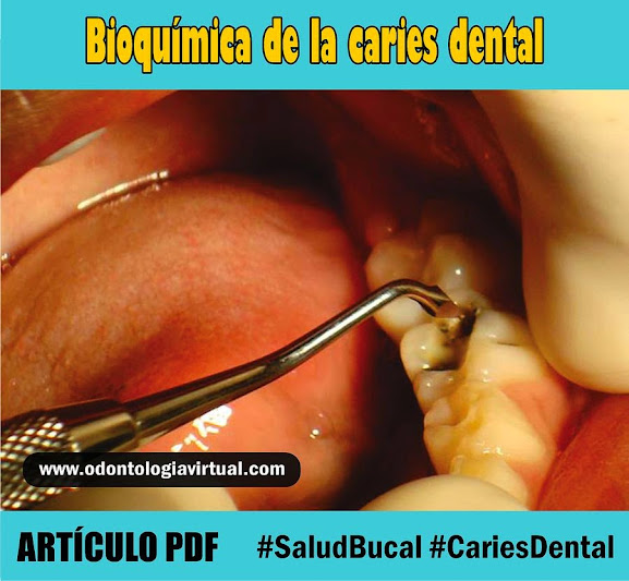 caries-dental-bioquímica
