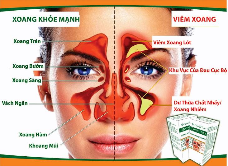 Thảo dược gia truyền Doctor Ninh trị viêm xoang, viêm mũi