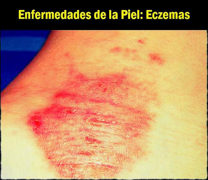 Enfermedades de la Piel: Eczemas