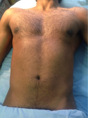 Jack Dunn Male Waxing Aftercare Male Chest Waxing Advice