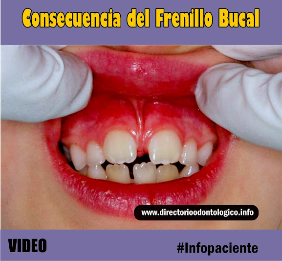 frenillo-bucal