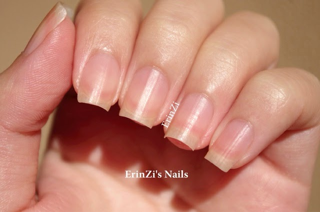 Nail Growth Problem Generated When There Is Several Disorders In Root Bed Plate And Cuticle Also Cause By Fungus