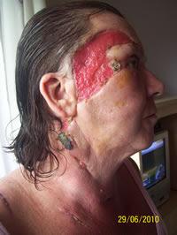Doomsday Reporter Flesh Bug Necrotising Fasciitis Ate My
