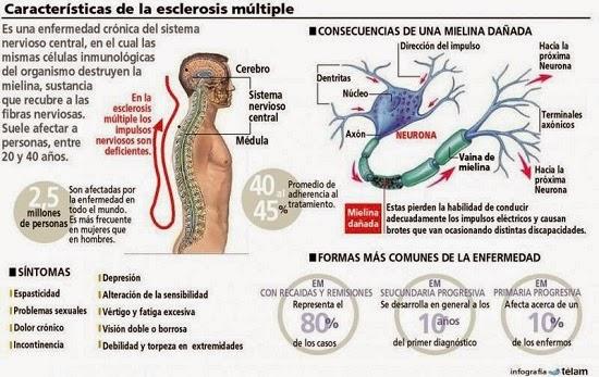 Caracteristicas de la Esclerosis múltiple