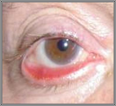 El peeling láser los cardenales bajo los ojos