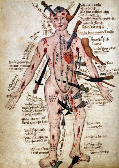 O desenho do wound man é uma representação médica do corpo humano na Idade Média. Essa representação, apesar de rudimentar, ajudava na hora do tratamento das feridas obtidas em batalhas.