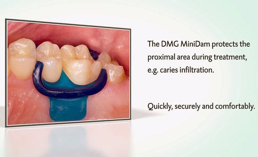 DMG-MiniDam