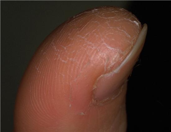 självsprickor fingrar orsak