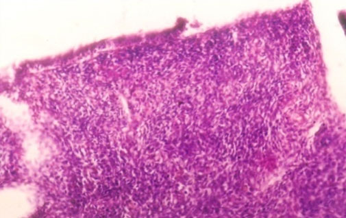 Microscopic picture showing desquamated epithelium in an endometritis affected buffalo (H&E stained at 200 X magnification).