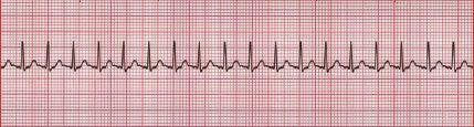 Atrial tachycardia ECG