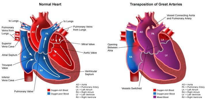 Heart made new when he was nine days old he had the arterial switch procedure open heart surgery which switched the great arteries back to normal position ccuart Choice Image