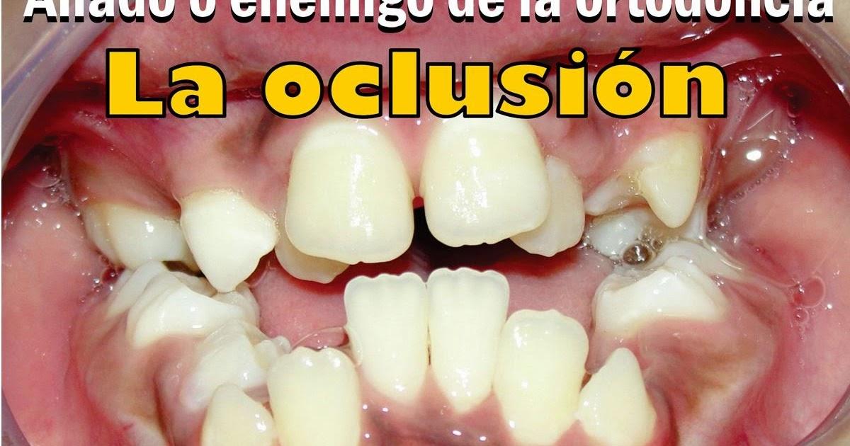 Videoconferencia la oclusi n aliado o enemigo de la for W de porter ortodoncia