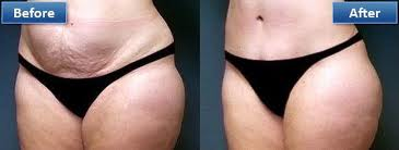 Lose middle fat picture 1