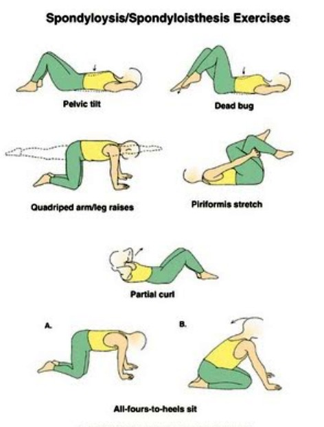 EXCLUSIVE PHYSIOTHERAPY GUIDE FOR PHYSIOTHERAPISTS: LUMBAR ...
