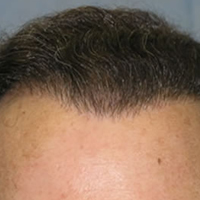 Are You a Good Hair Transplant Candidate? post image
