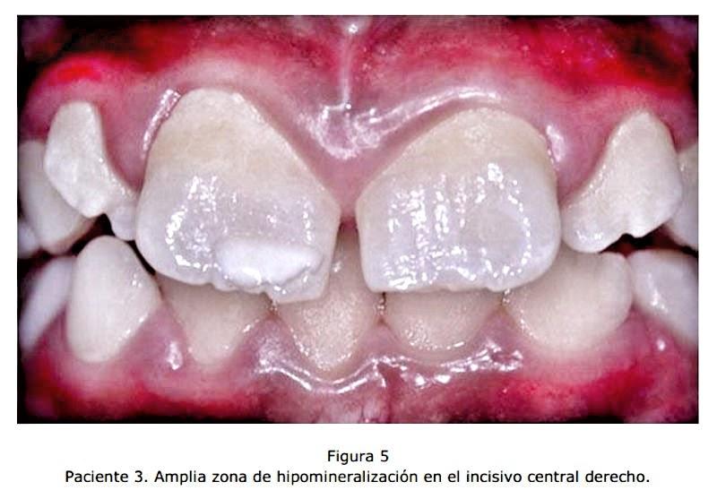 hipomineralizacion-dental
