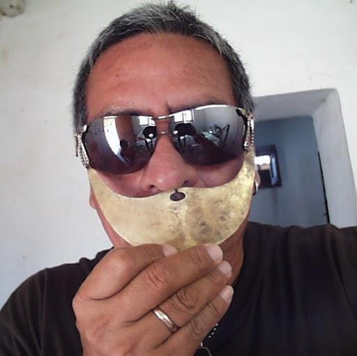 Albino Perez Photo 17