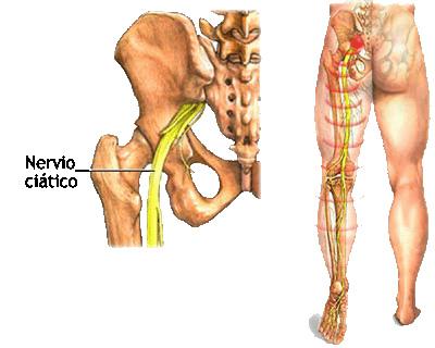 Pontos de pressão para dor na perna direita