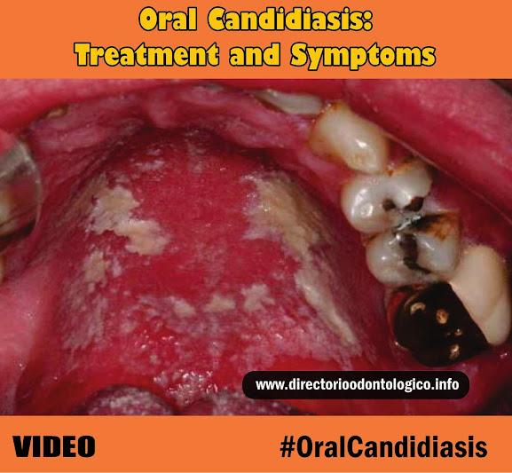 oral-candidiasis