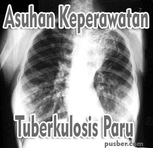 Asuhan Keperawatan Pasien Tuberkulosis Paru, ASKEP TB Paru