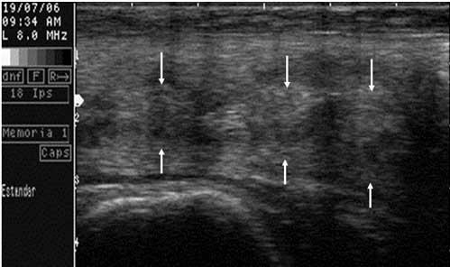 Imagen de una ecografía longitudinal del cérvix de un búfala. Las flechas señalan los anillos cervicales.ings.