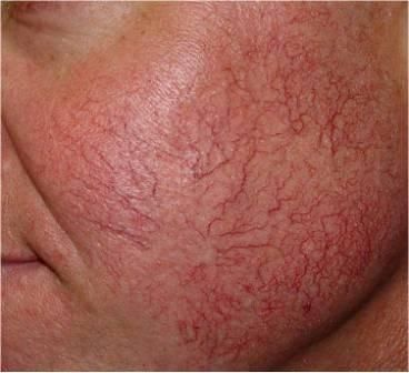 Cara menyembuhkan kulit yang menipis karena perawatan kecantikan